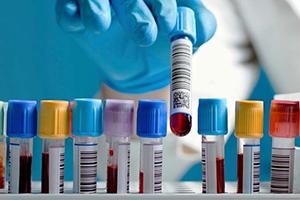Сдать кровь на анализы в Уфе