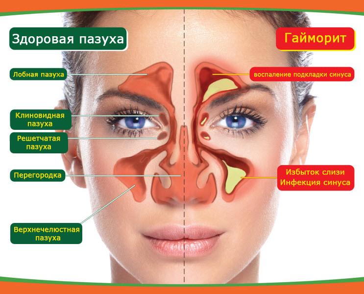 Лечение гайморита в Уфе